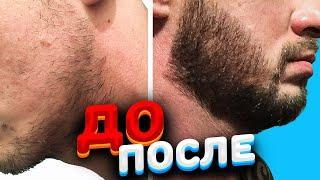 Как отрастить бороду в 30 лет? Отзыв о миноксидиле