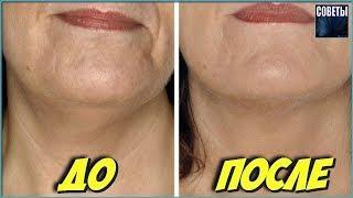 Skinmatrix Средство От Морщин Отзывы